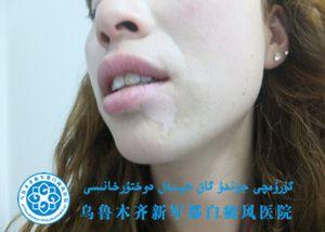 许某/女性/局限型/下颚白斑